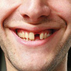 К чему снится выпал зуб?