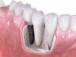 К чему снятся зубы?